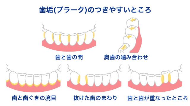 歯垢 つきやすい部分