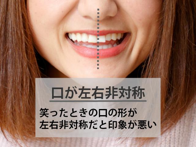 口のかたちが左右非対称だと印象が悪い
