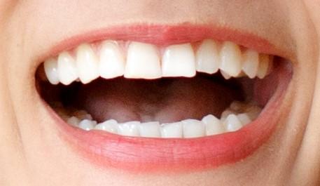 自然な白い歯