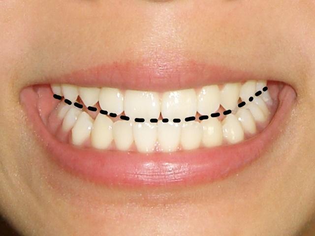 歯並びのライン
