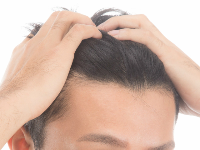 バルクオムをオススメしない理由3.育毛効果はない